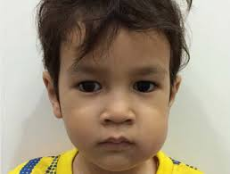 Painful swelling on one or both sides of the cheeks of a child's face.