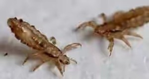Is pubic lice an Std or STI?