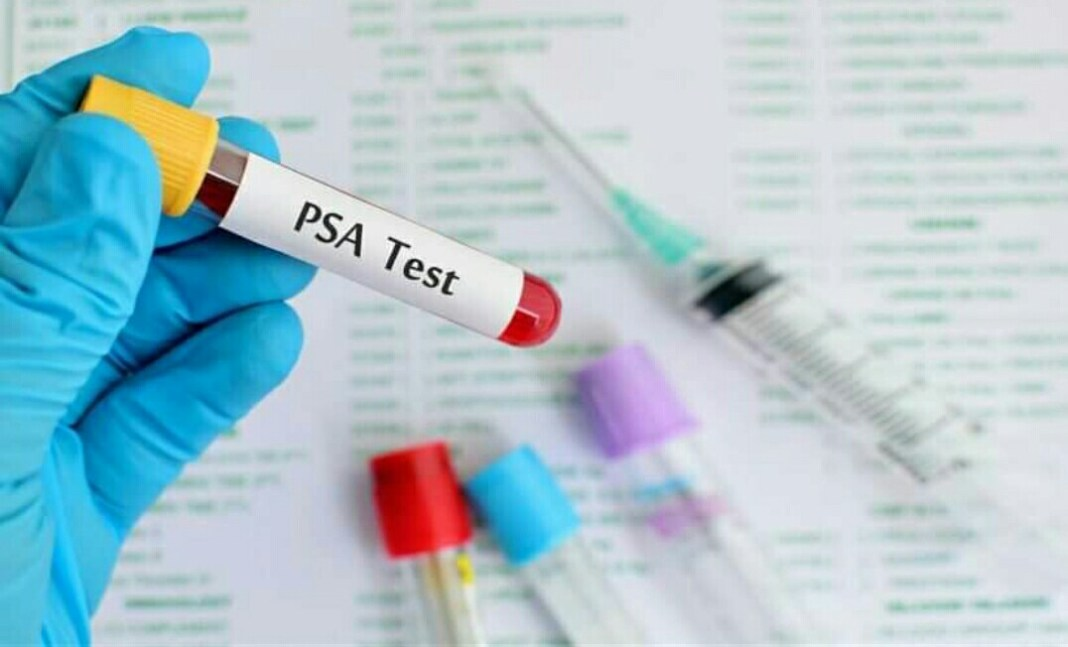 How much is the cost of PSA test in Nigeria?