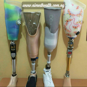How much is the cost of a prosthetic limb in Nigeria?