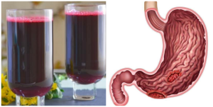Is Zobo drink good for ulcer patient?