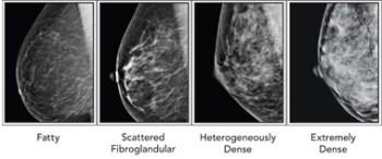 mammogram breast density
