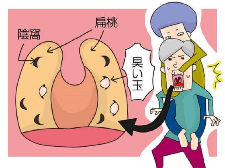 【画像】膿栓の取り方6選と対策!見えない膿栓も口臭原因!?