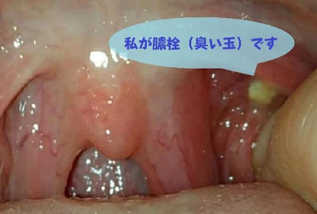 口腔内の濃栓(臭い玉)の画像2