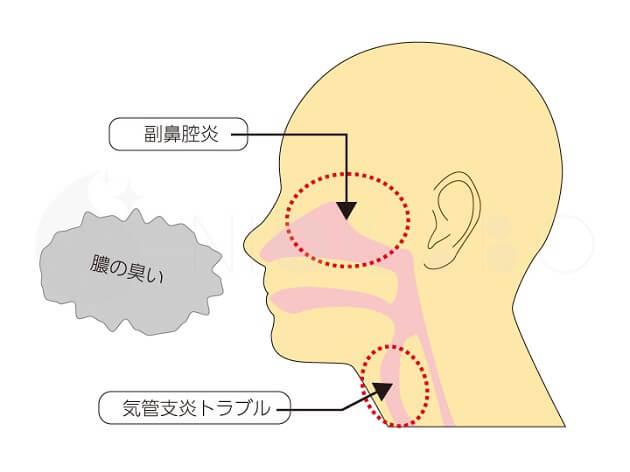 膿の臭いがする原因箇所の説明