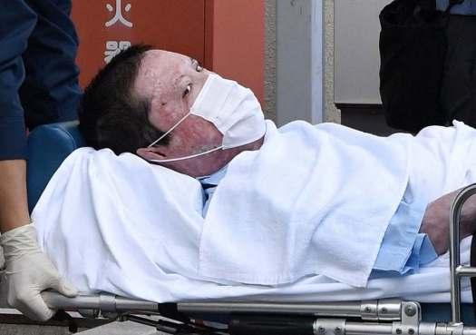 شينجي أوبا بعد خروجه من المستشفى | عبر رويترز