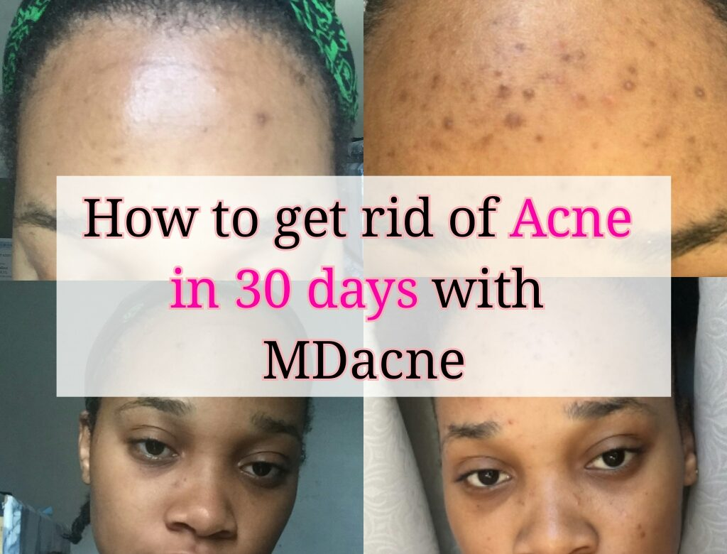 How To Get Rid Of Bad ACNE In 30 Days?!
