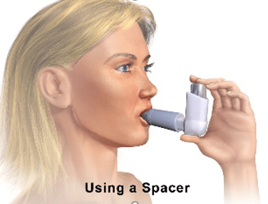 The Most Common Mistakes when Using an Inhaler