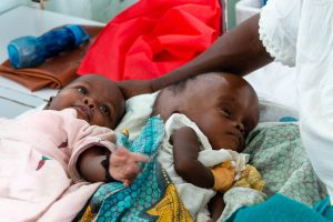 infants with hydrocephalus