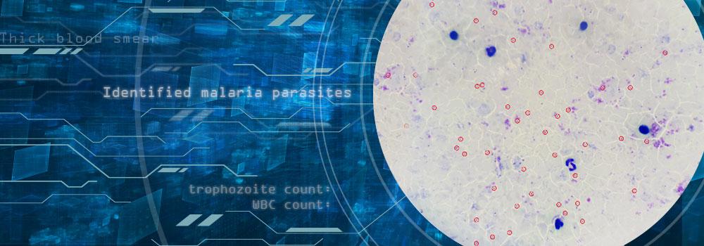 digitized image of blood film showing the identification of malaria parasites
