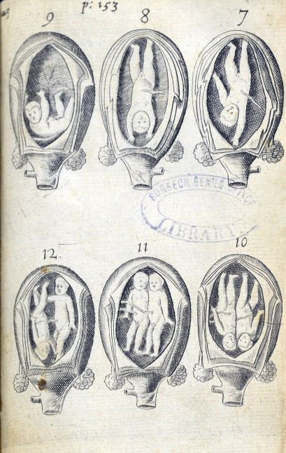 six engravings showing various positions of babies or twins in the womb.