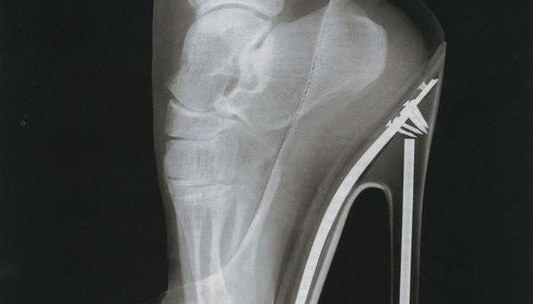 Does wearing high heels increase the risk of injury?