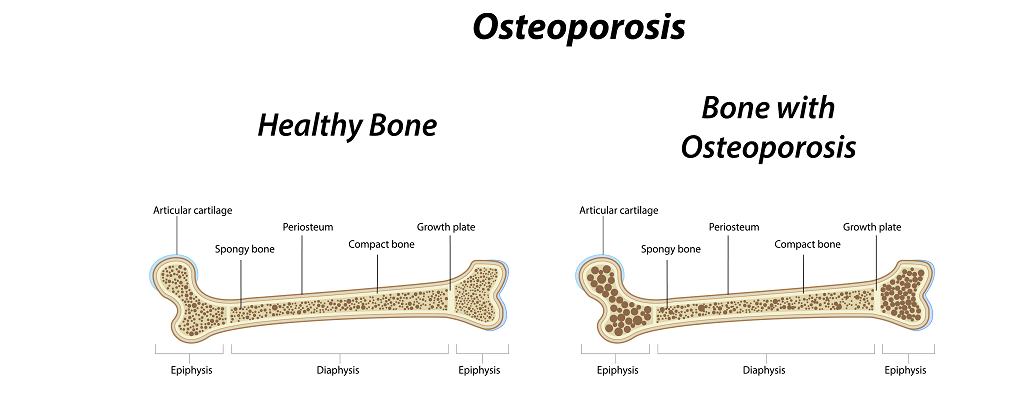 understanding how osteoporosis occurs and affects the human bones To understand osteoporosis, it is helpful to understand the basics of bone formation bone is living tissue that is constantly being renewed in a two-stage process (resorption and formation) that occurs throughout life.