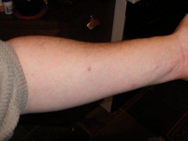 varicoză prevalență