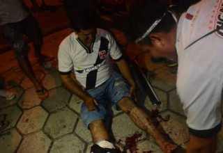 Torcedor vascaíno atingido com estilhaços de bomba de efeito moral foto : Clóvis Miranda