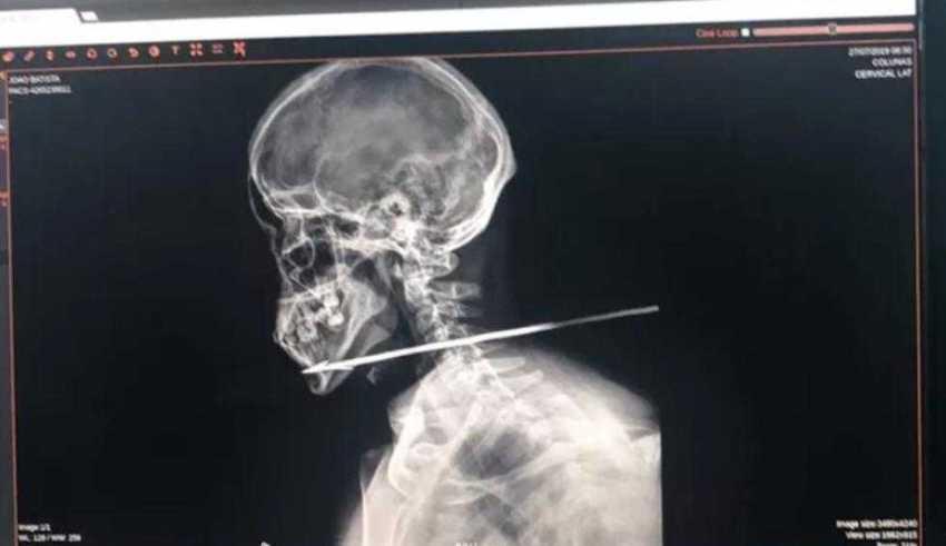 Homem leva flechada no pescoço e sobrevive pra contar a história!