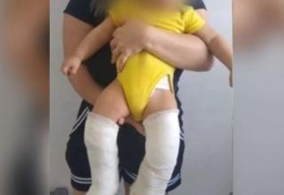 Padrasto quebrar perna de bebê de 11 meses por que mulher não conseguia engravidar dele