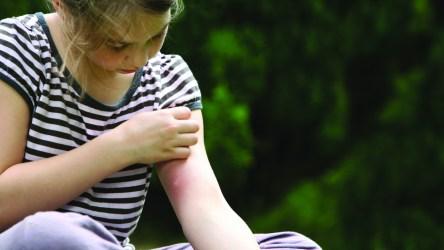 Каковы последствия комариного укуса?
