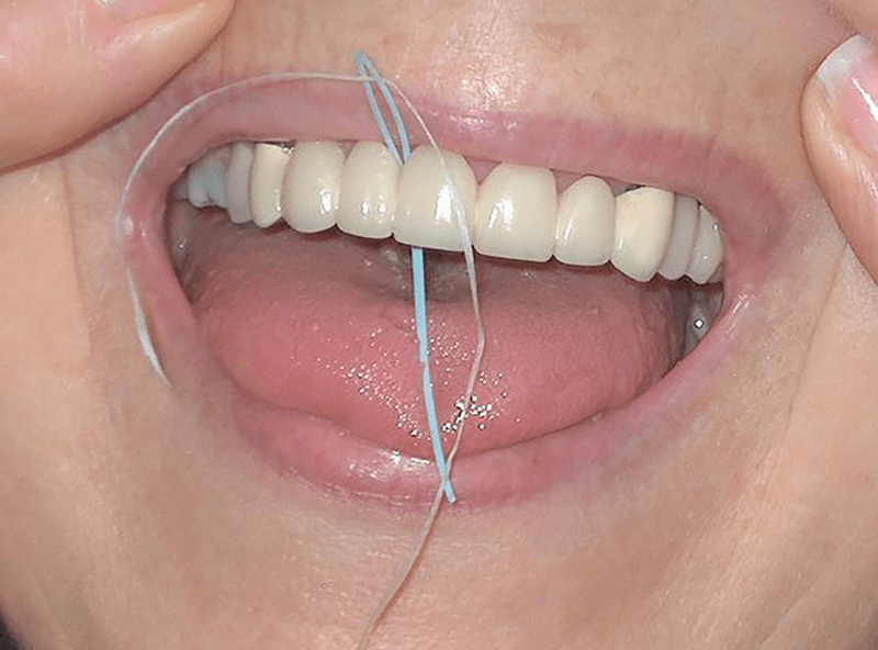 Floss Permanent Retainer