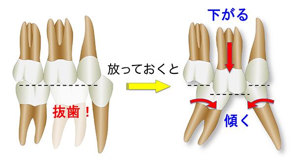 抜歯_600