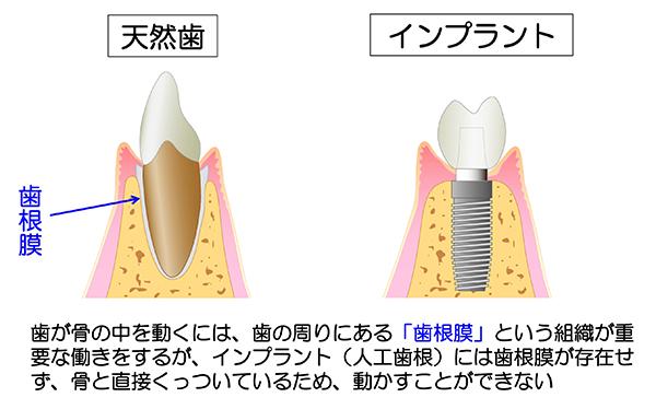 天然歯とインプラント2_600