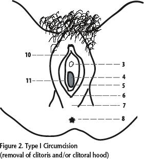 clitoral hood splitting