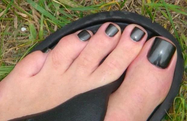 el problema de las uñas negras