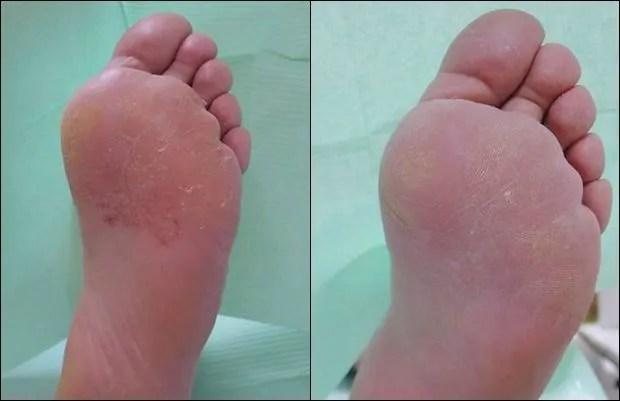 En ocasiones, la infección del pie de atleta puede extenderse por toda la plana del pie