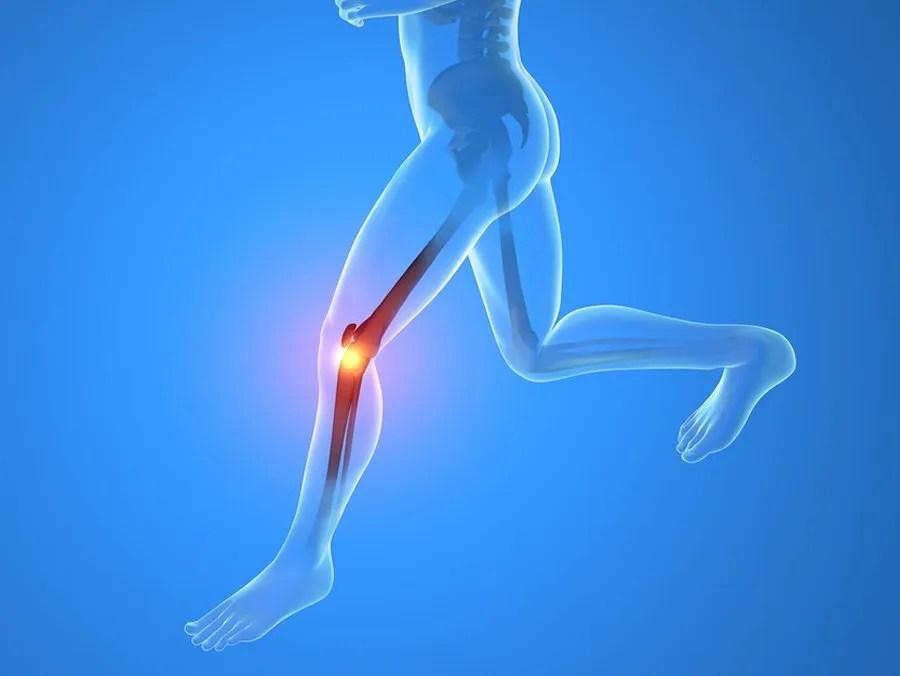 dolor en la rodilla por correr