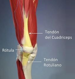 tendinitis cuadricipital