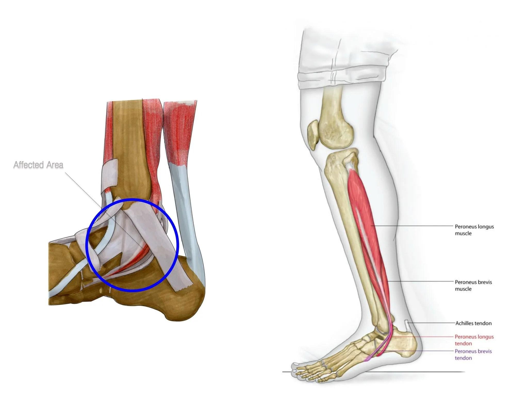 Excepcional Anatomía Tibial Posterior Ilustración - Anatomía de Las ...