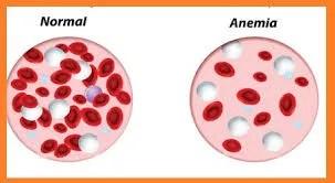 anemia del corredor