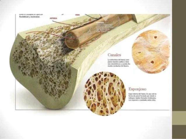 edema óseo