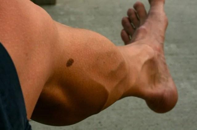 correr provoca varices