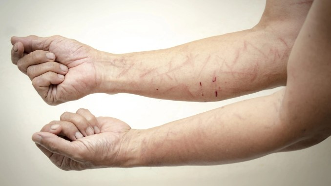 Cómo evitar rozaduras en la piel