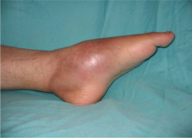 a lábak ízületei fájnak és fagynak)