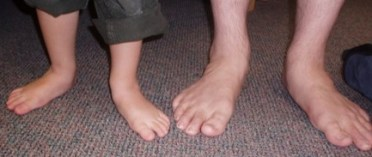 Your Foot Type is Inherited