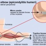 Home Remedies to Cure Tennis Elbow Naturally & Fast