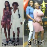 Before & After Pics of Nollywood Actress Ejinne Before The Big Assets