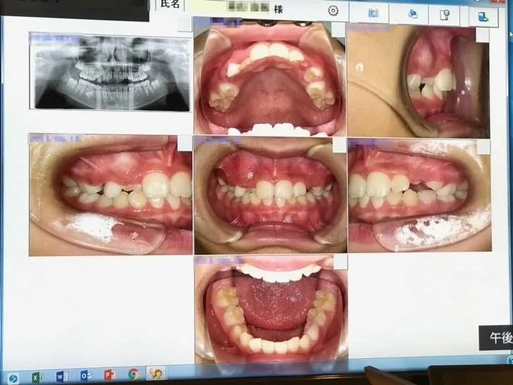 本来噛み合うべき上下の歯が噛み合わず、うまく生えてこない不正咬合の状態を撮影した写真