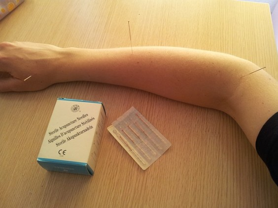 acupuncture-568136_640