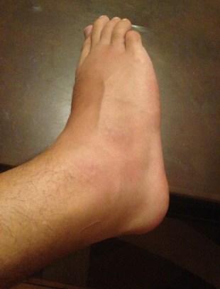 My foot at its worst in Moda, Kadıköy, İstanbul, Turkey
