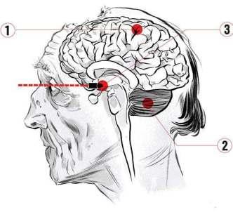 Come funziona il cervello di uno Zombie