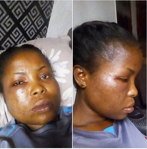 A Young Battered Lady, Escapes Robber Who Tried To Rape Her In Bayelsa (Photos)