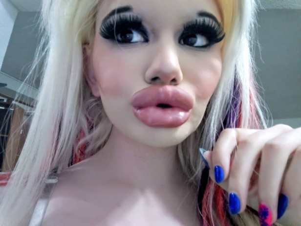 Bulgarian Woman Goes Through 15 Surgeries In A Year To Look Like Barbie