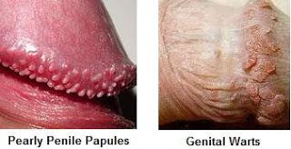 Alcuni tipi di condilomi genitali maschili