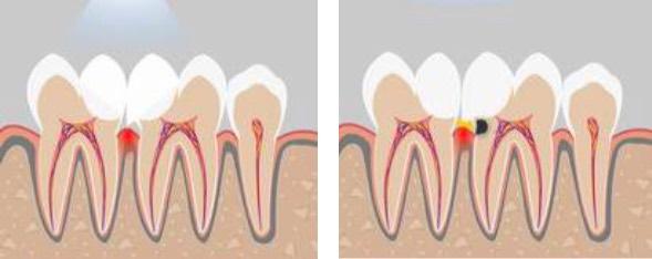 нависающие края пломбы травмируют десны и приводят к ее воспалению