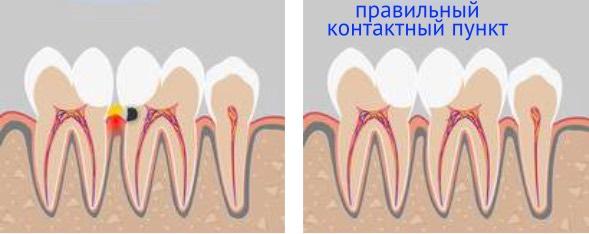 отсутствие правильного контактного пункта между зубами