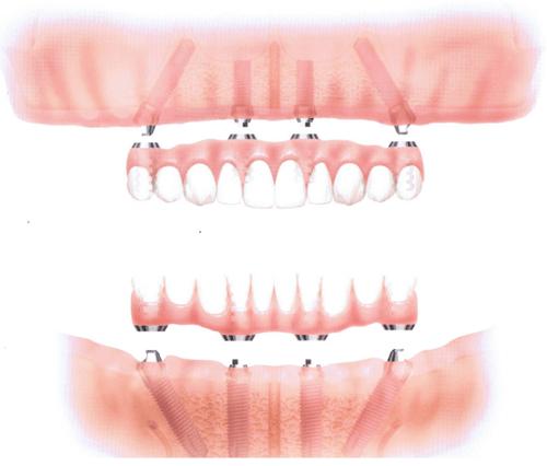 протезирование на верхней и нижней челюсти по методу Всё на 4-х имплантатах