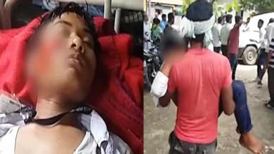 Photo of Assam: 40 student injured in a road accident, 20 admitted in GMCH